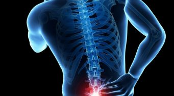 Lower Back Pain & Sciatica Workshop