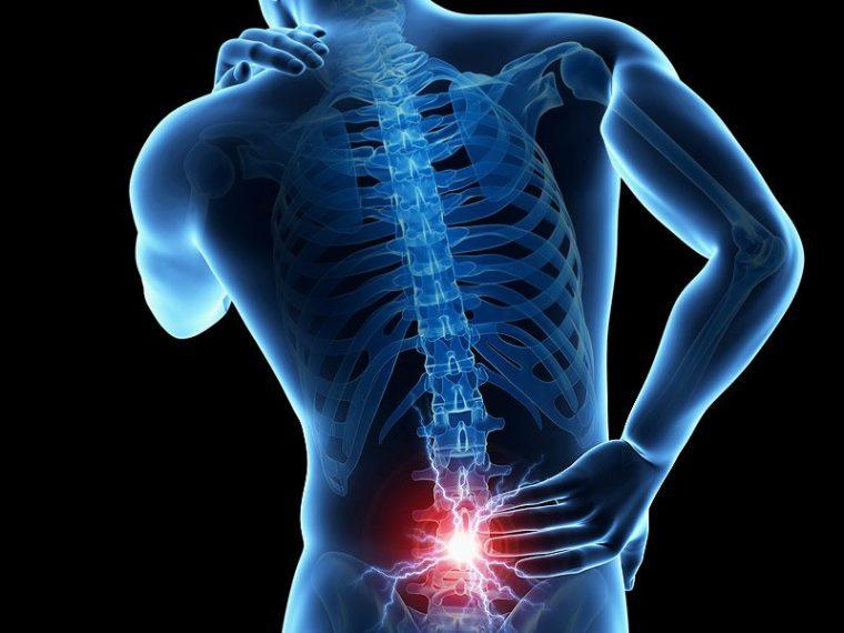 Lower Back Pain & Sciatica Workshop